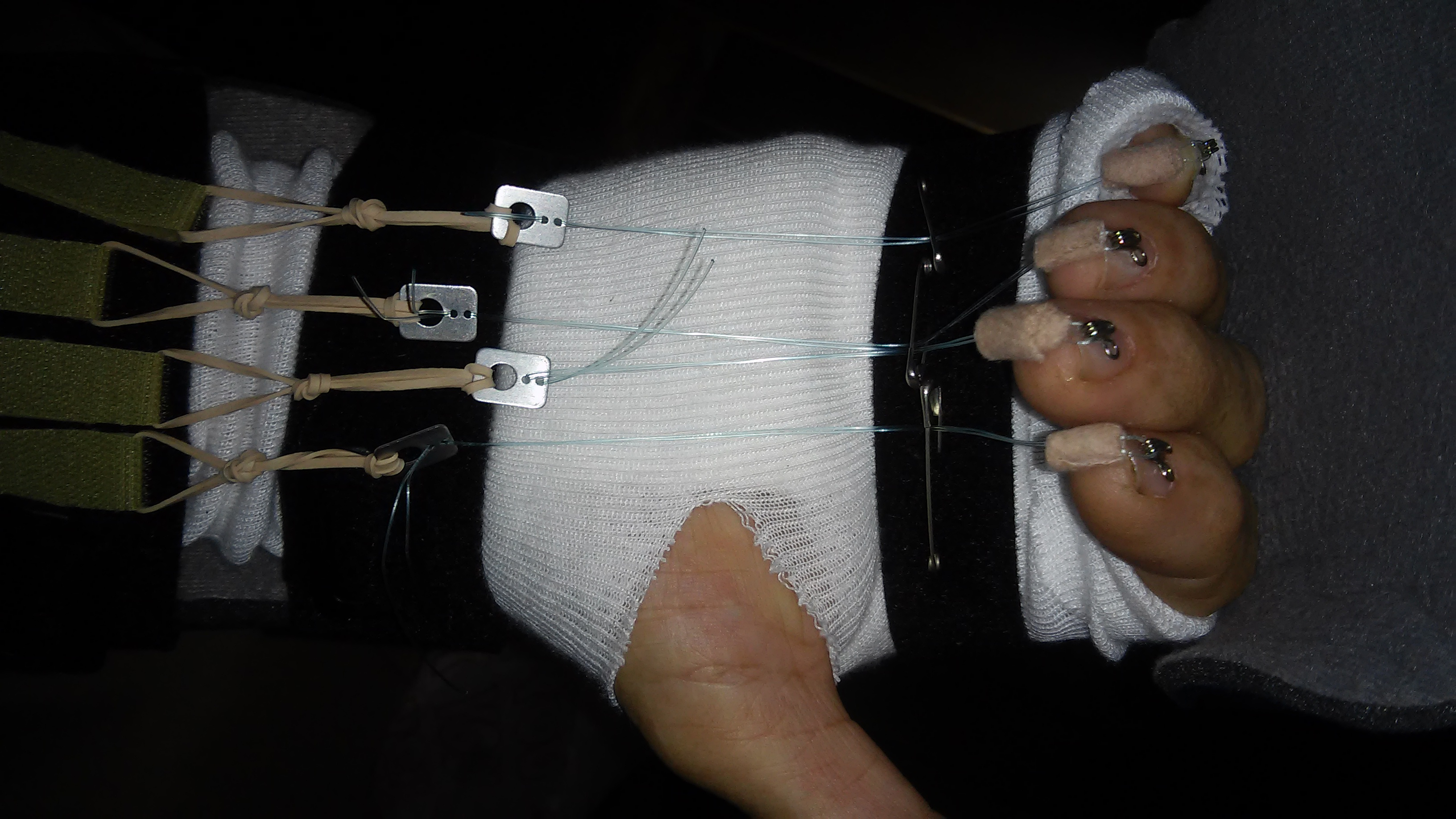 Nothing bionic about this. Rubber bands, 20# test line, CA glue, bra hooks